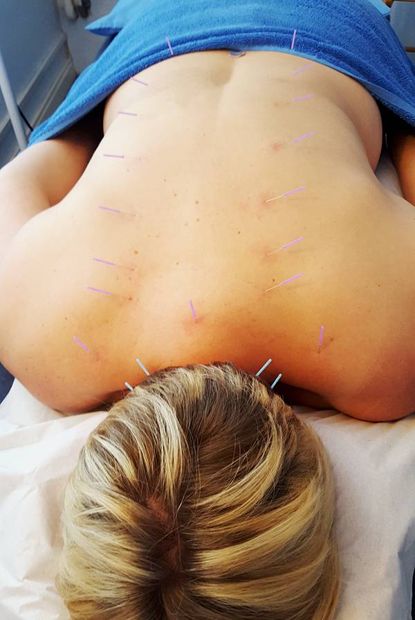 Me in month 3 acupuncture
