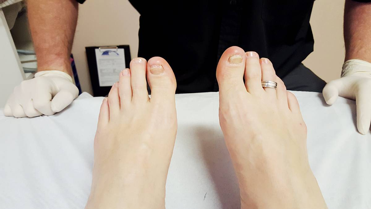 State of my toenails with the fungal infection FEb 2016