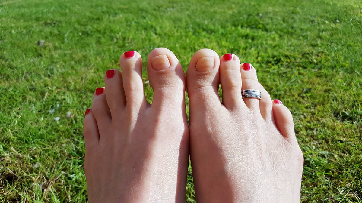 5 months after the treatment from Newcastle Foot Clinic